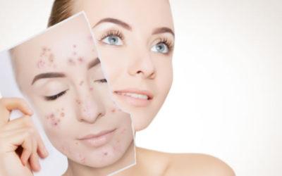 Elimina las manchas de tu cara con un tratamiento facial adecuado